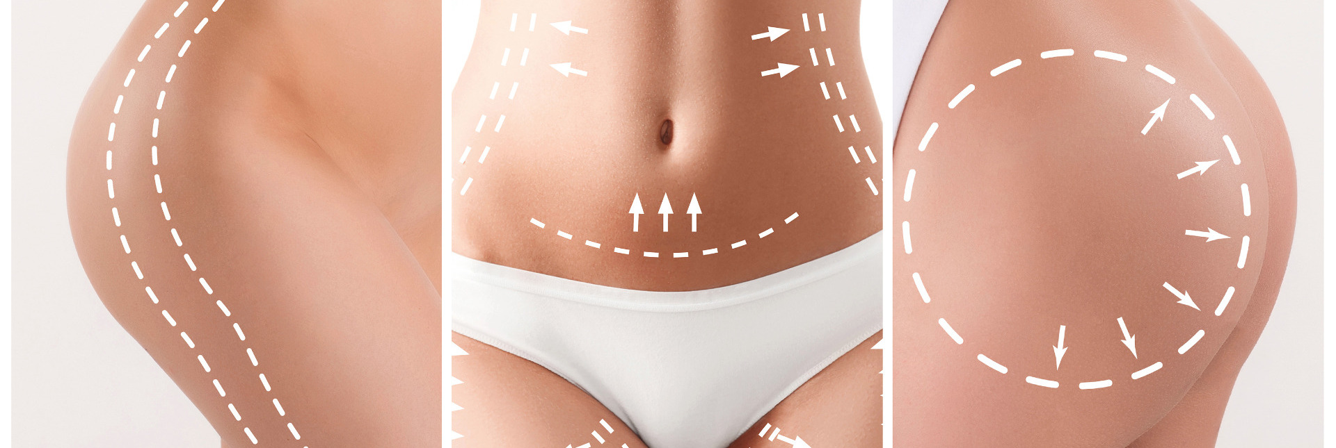 Enhance Cosmetic Surgery - Body